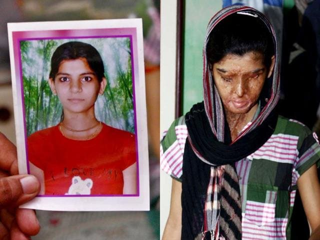 Acid-attack-survivor-Ritu-Saini-and-a-photo-of-hers-as-a-child-HT-Photo