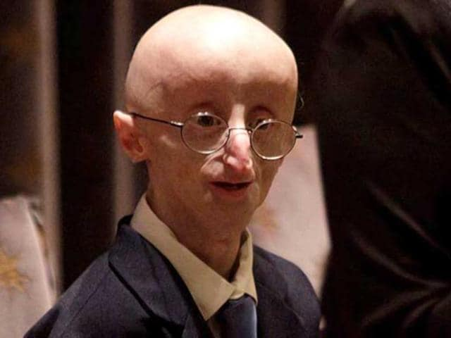 Sam Berns,progeria,Robert Kraft