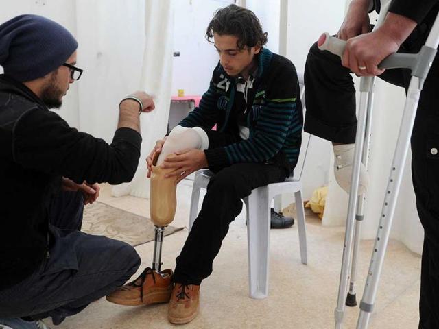 Syria violence,Syria war,prosthetic limb