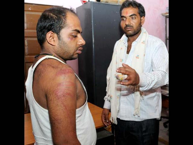 Two-relatives-of-a-patient-show-their-injury-marks-after-they-were-allegedly-beaten-by-the-junior-doctors-of-RIMS-in-Ranchi-Diwakar-Prasad-HT-photo