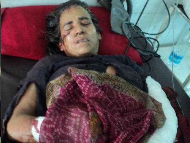 56-year-old-Kamla-Devi-who-killed-a-leopard-in-self-defence-in-Uttarakhand-Shrikrishan-Uniyal-HT-Photo