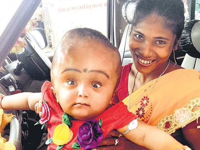 A-crowdfunded-initiative-has-since-enabled-Roona-to-get-treatment-and-her-head-is-now-almost-a-normal-size