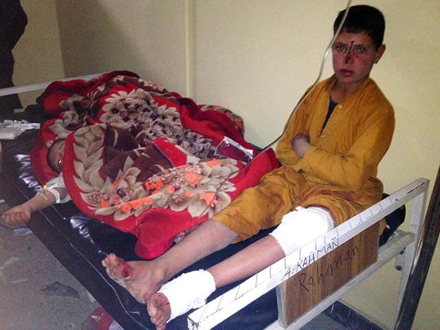 Afghan-children-are-treated-at-Paktika-hospital-after-the-suicide-attack-in-the-Yahyakhail-district-of-Kabul-on-Sunday-AP-Photo