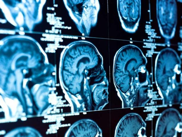 stroke,brain scan,risk