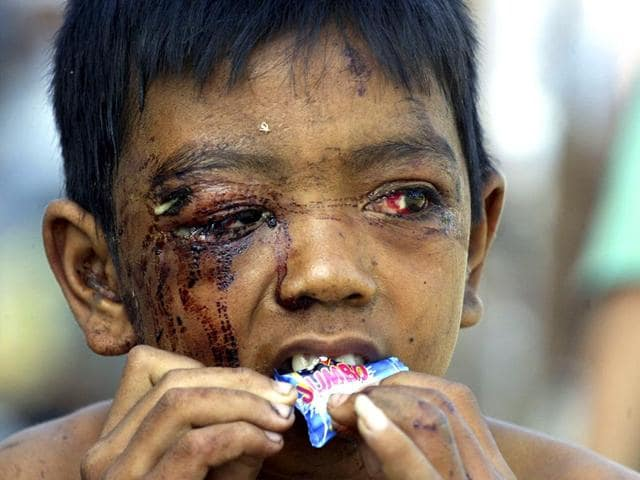 An Acehnese child who survived the 2004 tsunami eats a sweet at a military hospital in the Indonesian city of Banda Aceh in January 2005. (Reuters)