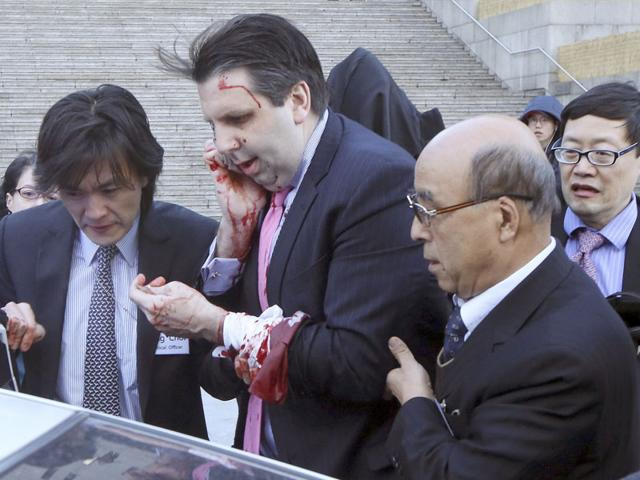 Well-wishing South Korean offers dog meat to injured US envoy