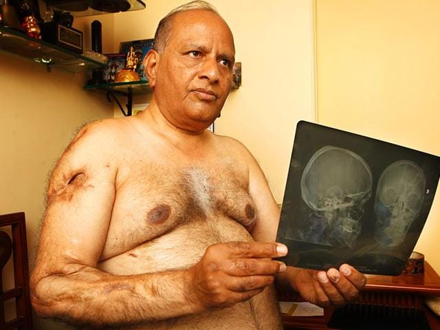 The-glass-shards-from-the-bomb-blast-near-the-Bombay-Stock-Exchange-BSE-pierced-through-Kirti-Ajmera-s-face-arms-and-broke-his-ribcage-tearing-his-life-apart-forever-Vidya-Subramanian-HT-photo