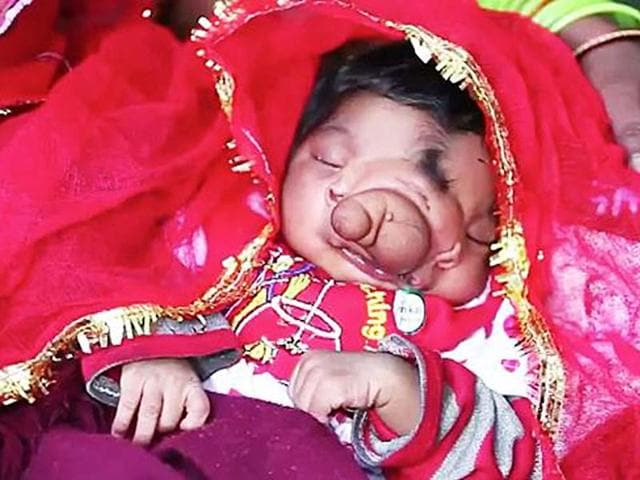 baby girl with trunk,Aligarh,worshipped