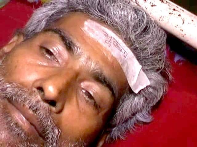 An-injured-person-at-Darbhanga-Medical-College-Hospital-with-a-sticker-pasted-on-his-forehead-HT-Photo