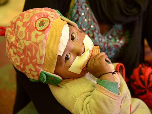 An-injured-child-recovers-under-a-makeshift-ward-next-to-the-government-hospital-in-Chautara-Nepal-Gurinder-Osan-HT-Photo
