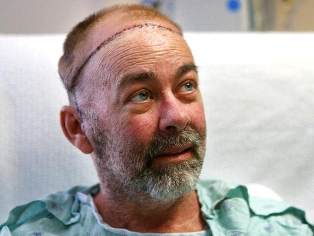 skull-scalp transplant,surgery,cancer