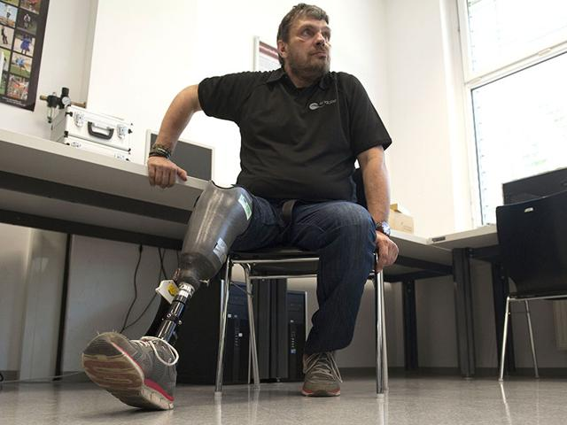 New hope for amputees: Here's world's first 'feeling' leg prosthesis