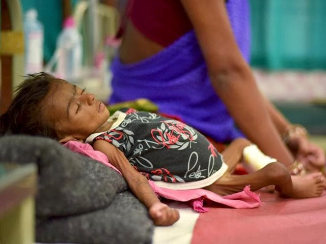Two-month-old-Jyoti-lies-in-a-bed-in-a-malnutrition-intensive-care-unit-in-Dharbhanga-Medical-College-in-Dharbhanga--in-Bihar-Reuters