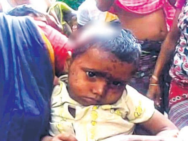 The-four-year-old-daughter-whose-head-was-sliced-by-her-mother-in-Malda-village-HT-photo