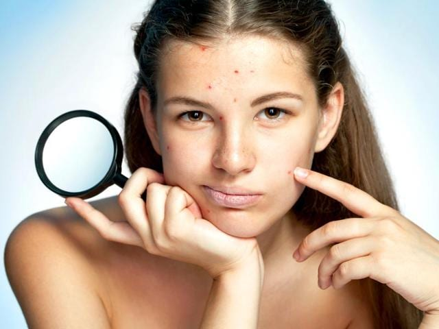 Acne,Acne Problem,Vitamin B12