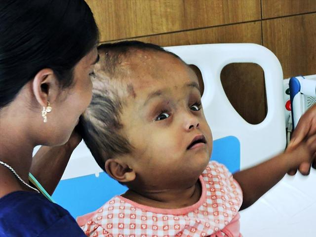 4-year-old-Roona-Begum-with-her-parents-at-Fortis-Hospital-in-Gurgaon-HT-Photo