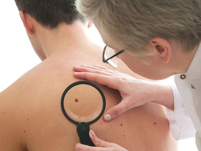 Melanoma,Melanoma Symptoms,Cancerous Moles