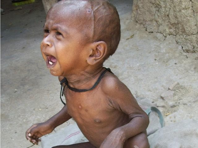 Malnourished tribal child from Sheopur district. (HT file photo)