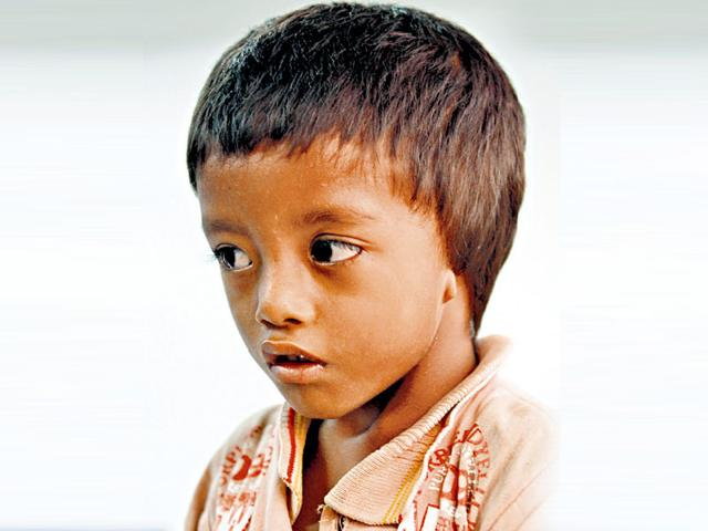 Four-year-old Pradip Shah from Nepal needs Rs 7 lakh for surgery. (Virendra Singh Gosain/HT Photo)