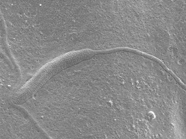oldest sperm