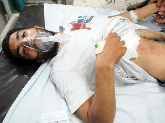 One of the injured undergoing treatment at Government Rajindra Hospital in Patiala on Tuesday. (HT photo)