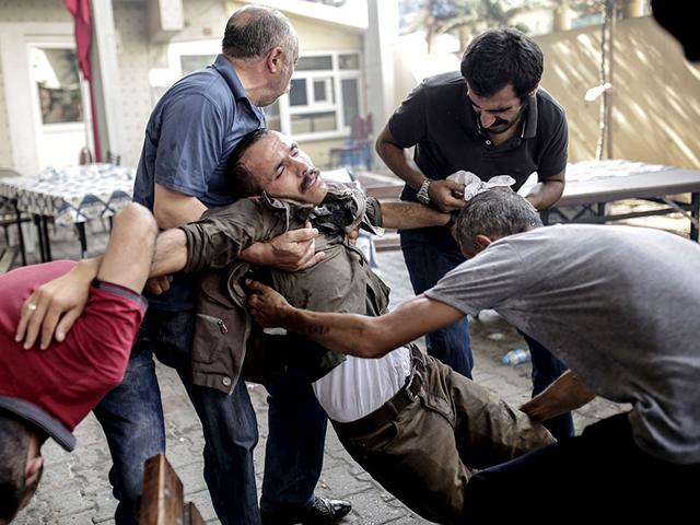 People help an injured man during clashes with Turkish police officers on Saturday at Gazi district in Istanbul. Turkey's military carried out a new wave of air and artillery strikes against Islamic State (IS) jihadists in Syria and Kurdish militants in northern Iraq, in an escalating campaign Ankara says is aimed at rooting out terror. (AFP Photo/Yasin Akgul)