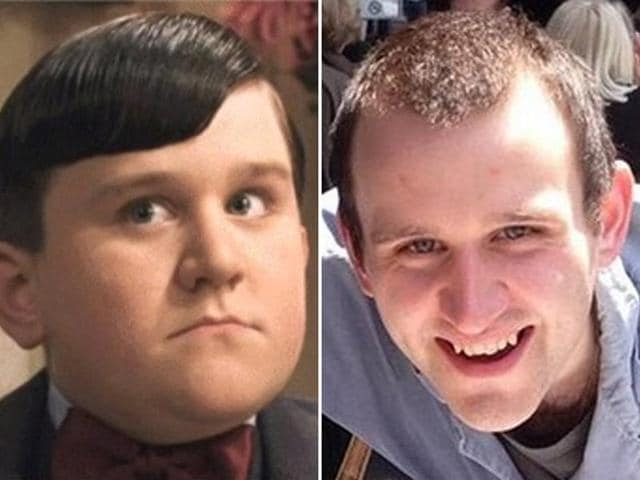 Dudley Dursley's amazing transformation: Harry Melling then and now.