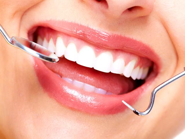 Cosmetic procedures for shiny white teeth are gaining popularity but they cost up to lakhs. (Shutterstock Photo)