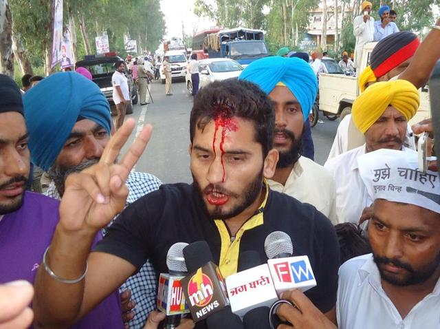 Aam Aadmi Party worker Jagroop Singh talking to the media after being attacked by protesters at Aladdin village in Tarn Taran district on Wednesday.