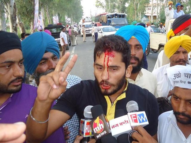 AAP worker talking to media persons after he was attacked by protesters during  AAP's Tarn Taran Rally .