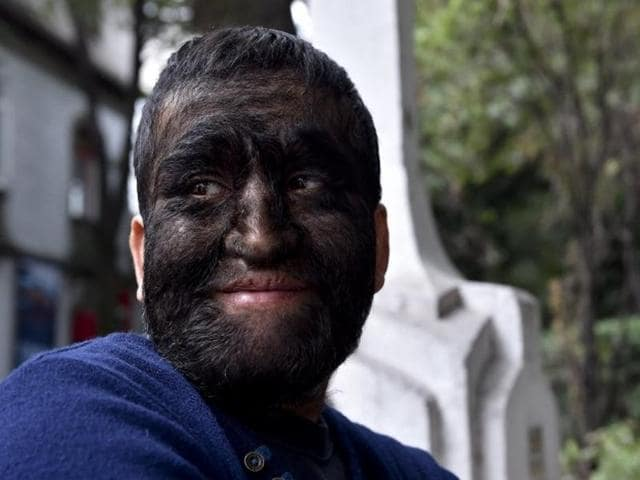 Jesus Aceves, known as the 'Wolf Man' due to a condition of the disease hypertrichosis, speaks during an interview in Mexico City.