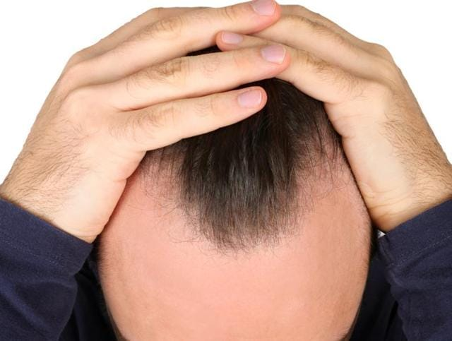 Hereu0027s Some Good News For All Those Of You Struggling With Receding  Hairlines. Scientists Have Identified New Drugs That Could Stimulate Rapid  And Robust ...