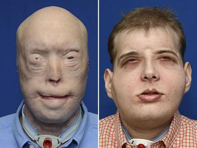 Volunteer firefighter Patrick Hardison, 41, of Senatobia, Mississippi is shown in this composite photo showing before-and-after face transplant surgery in this undated handout provided by NYU Langone Medical Center n New York.