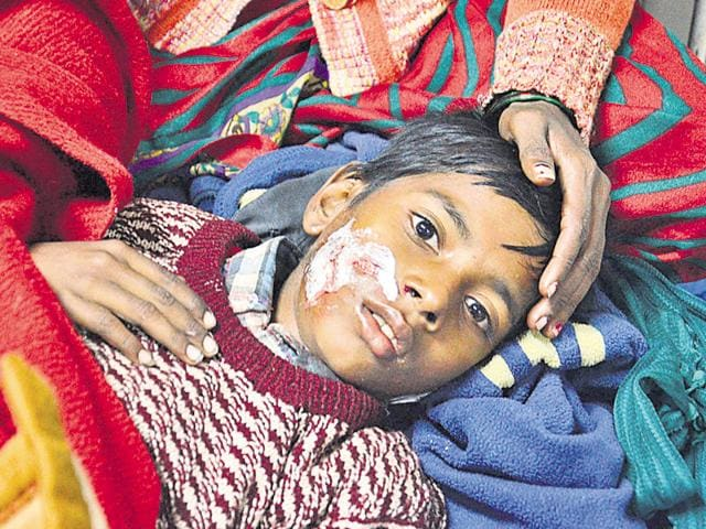 10-year-old Narinder Kumar, a resident of Bhagtanwala, was bitten by stray dogs on Wednesday in Amritsar.