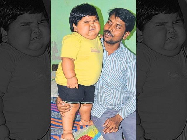 Jharkhand,Bokaro,Toddler weighs 24 kg