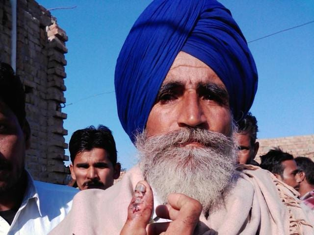 Villager Sukhmander Singh showing his thumb injured in Friday night's police action on the protesters, at Channu village near Muktsar on Monday.