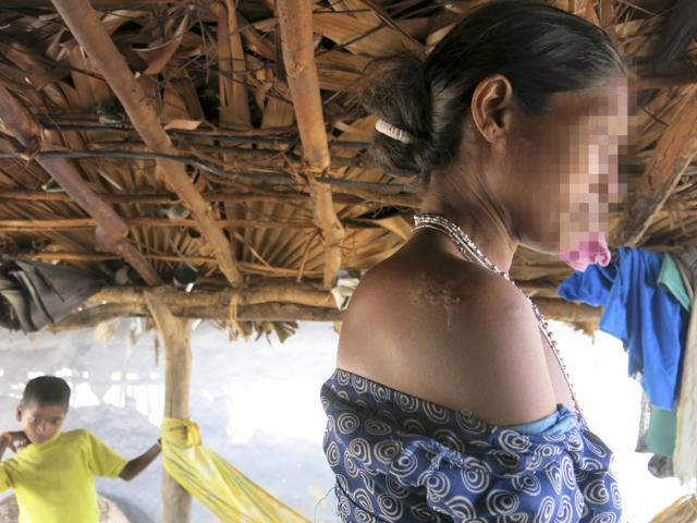 This Peddagellur survivor and her daughter-in-law were assaulted and gangraped. She was assaulted with rifles on her right shoulder, and sustains this injury.(Chitrangada Choudhury/HT Photo)