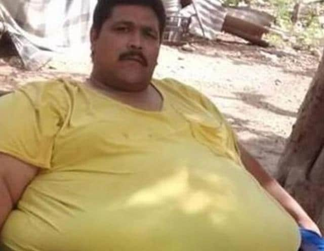 Andres Moreno, 38, died of a heart attack and peritonitis (inflammation of the abdominal lining) in Ciudad Obregon, in Sonora state