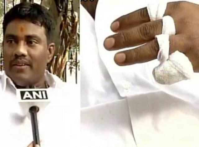 """A man has claimed that he chopped off his left hand's little finger and offered it at Tirupati temple in Andhra Pradesh as a """"token of gratitude"""" after Congress leaders Sonia Gandhi and Rahul Gandhi were granted bail in the National Herald case"""