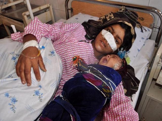 Reza Gul, 20, whose nose was sliced off by her husband, lies on a bed with her baby as she receives treatment at a hospital in the northern province of Faryab.