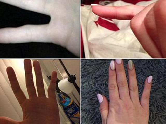 """""""Smartphone pinky"""" - a perceived bend in the little finger on one's dominant hand - may occur is people who use the device for at least six hours a day, the Sydney Morning Herald reported."""