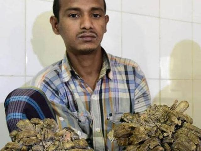 """A Bangladeshi father dubbed """"Tree Man"""" for massive bark-like warts on his hands and feet will finally have surgery to remove the growths that first began appearing 10 years ago,"""