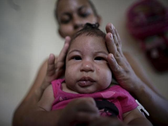 Rosana Vieira Alves fixes the hair of her 4-month-old daughter Luana Vieira, who was born with microcephaly,  at their house in Olinda, Brazil. The suspected link between the Zika virus and a birth defect known as microcephaly appears