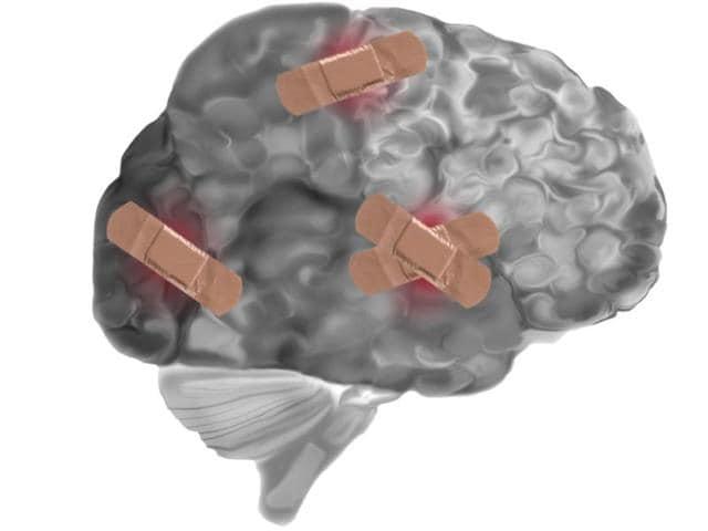 Concussion,Head injury,Traumatic brain injury