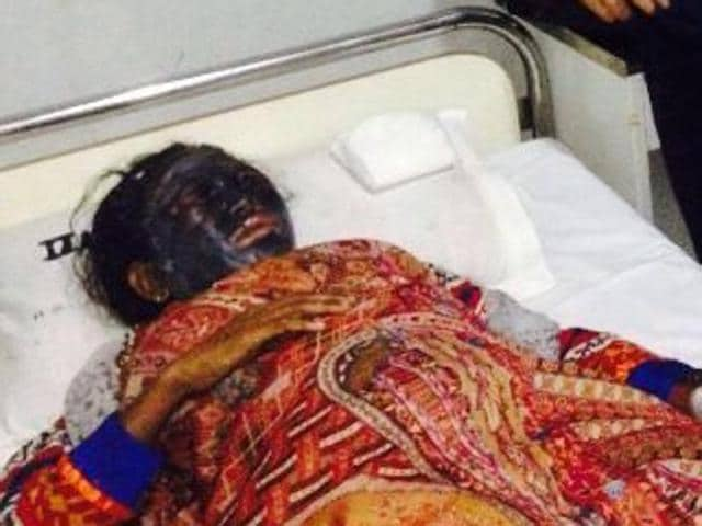 Soni Sori was attacked by unidentified men who smeared her face with black paint like substance