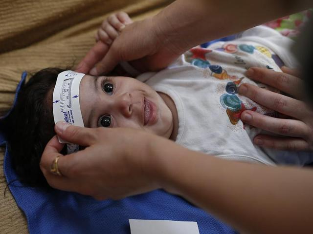 Three-month-old Esther Kamilly has her head measured by Brazilian and US health workers from the United States' Centers for Disease Control and Prevention (CDC) at her home in Joao Pessoa, Brazil.