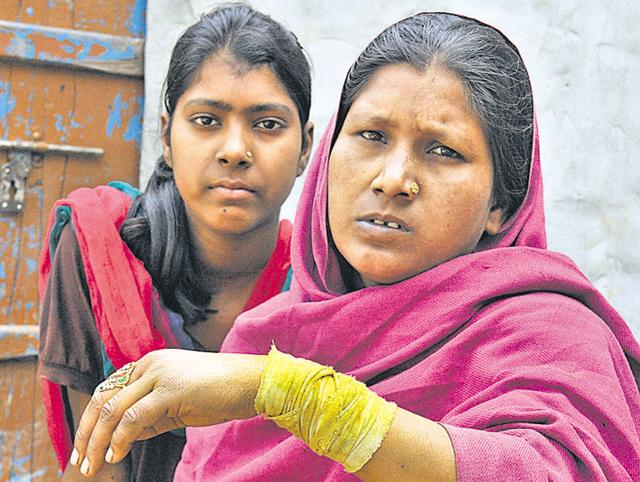 Injured Madhu with her daughter Pooja at their residence in Jalandhar on Wednesday.
