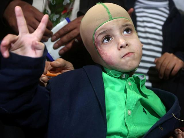 Five-year-old Ahmed Dawabsha, a Palestinian boy who survived a firebombing by Jewish extremists targeting his family home that killed his parents and brother, is surrounded by relatives and Palestinian officials during a visit in the northern West Bank city of Nablus.