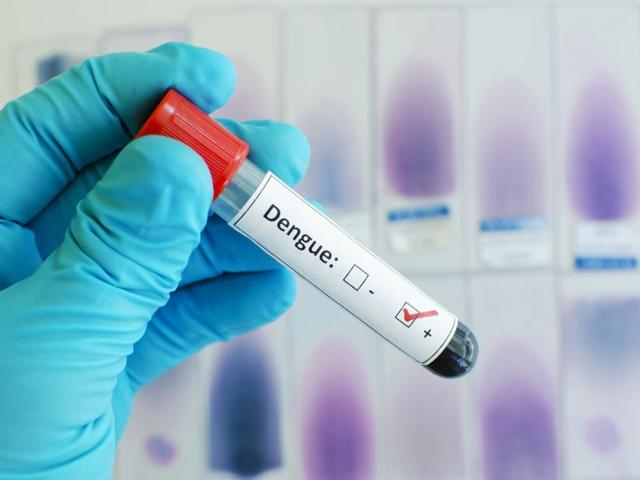 Dengue — which is in the same family of flaviviruses as Zika — infects some 390 million people each year in more than 120 countries of the world.