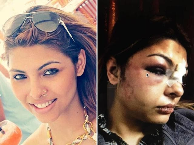 The pictures that have gone viral show Priyanka with a battered face, a swollen eye and stitches on her lips and forehead